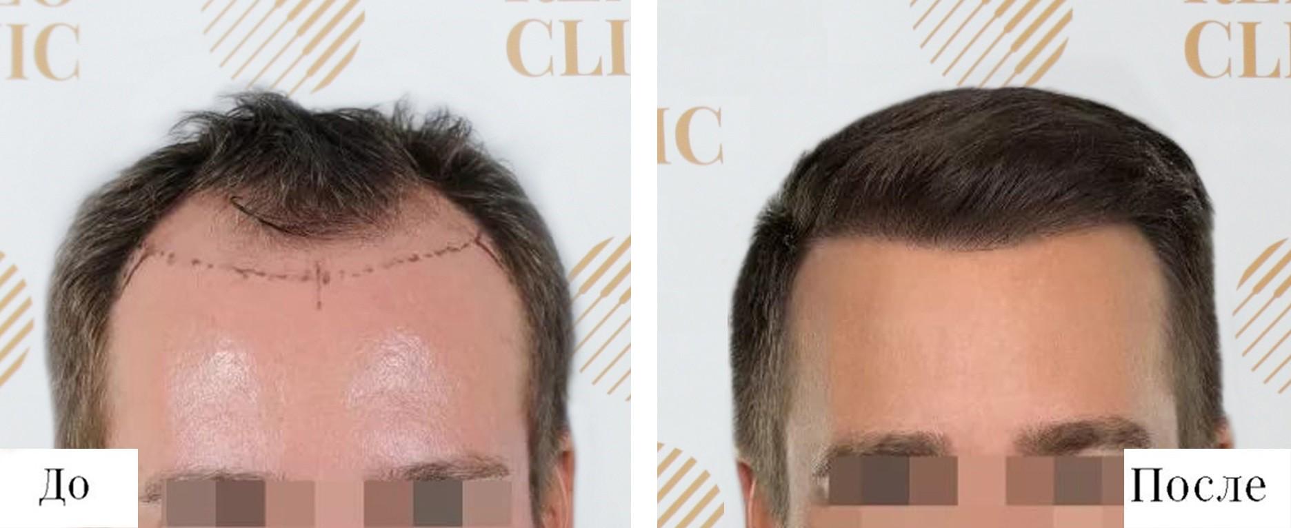 Нормальная линия волос у мужчин фото